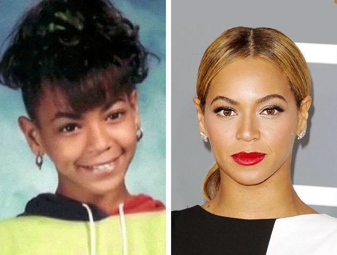 Фото Бейонсе до и после отопластики